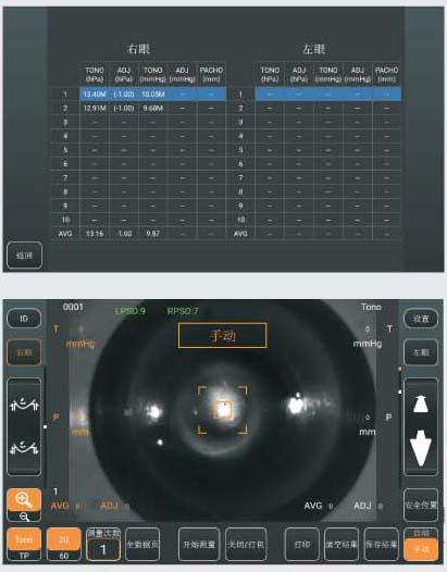 Ophthalmic Eye Auto Non Contact Tonometer